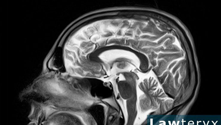 3 Ways Traumatic Brain Injury Can Affect Mental Health